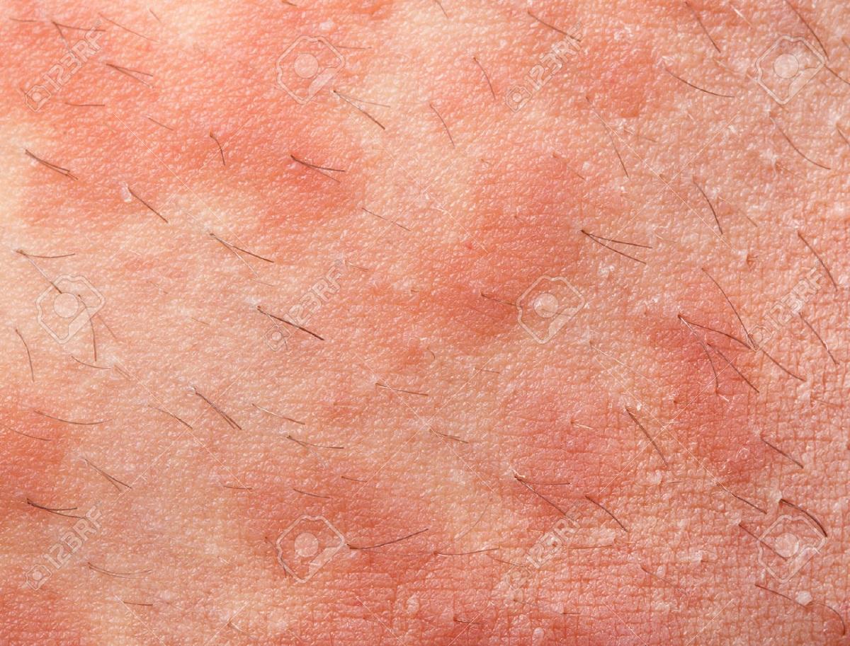 dermatitis_atopik