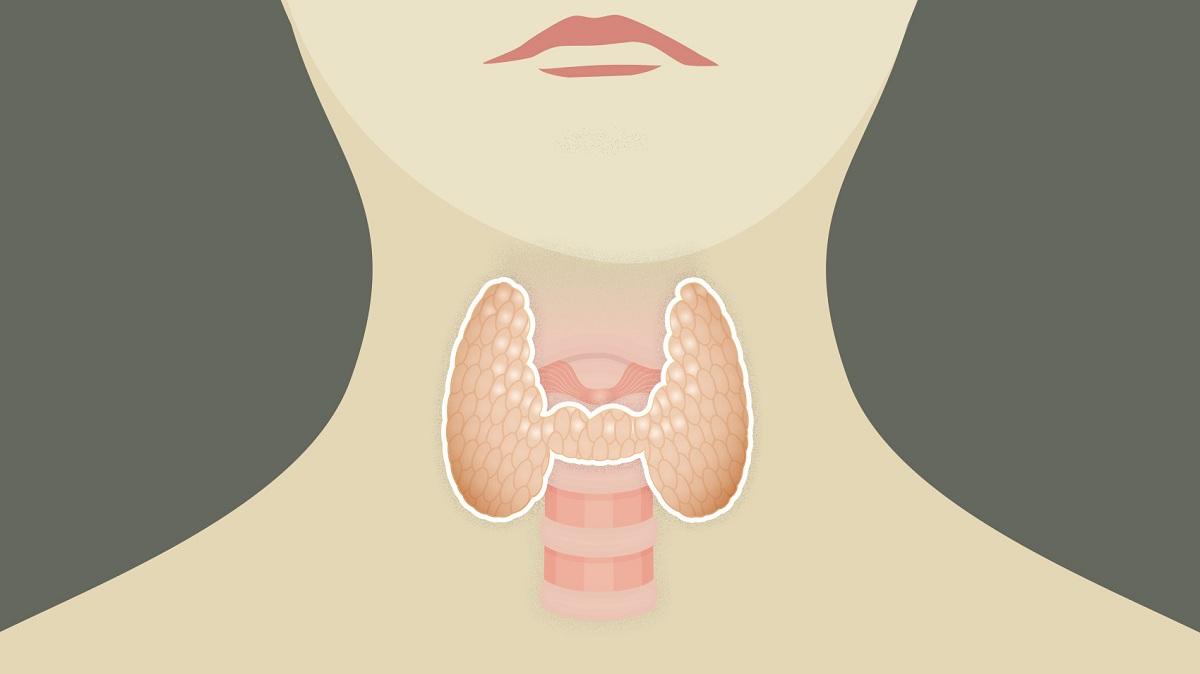 kanker_tiroid