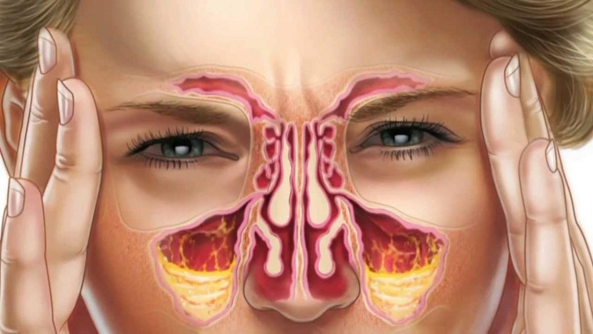 penyakit_sinusitis