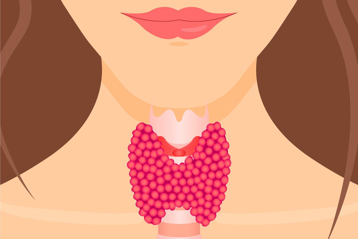 penyakit_tiroid
