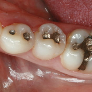 tambal-gigi