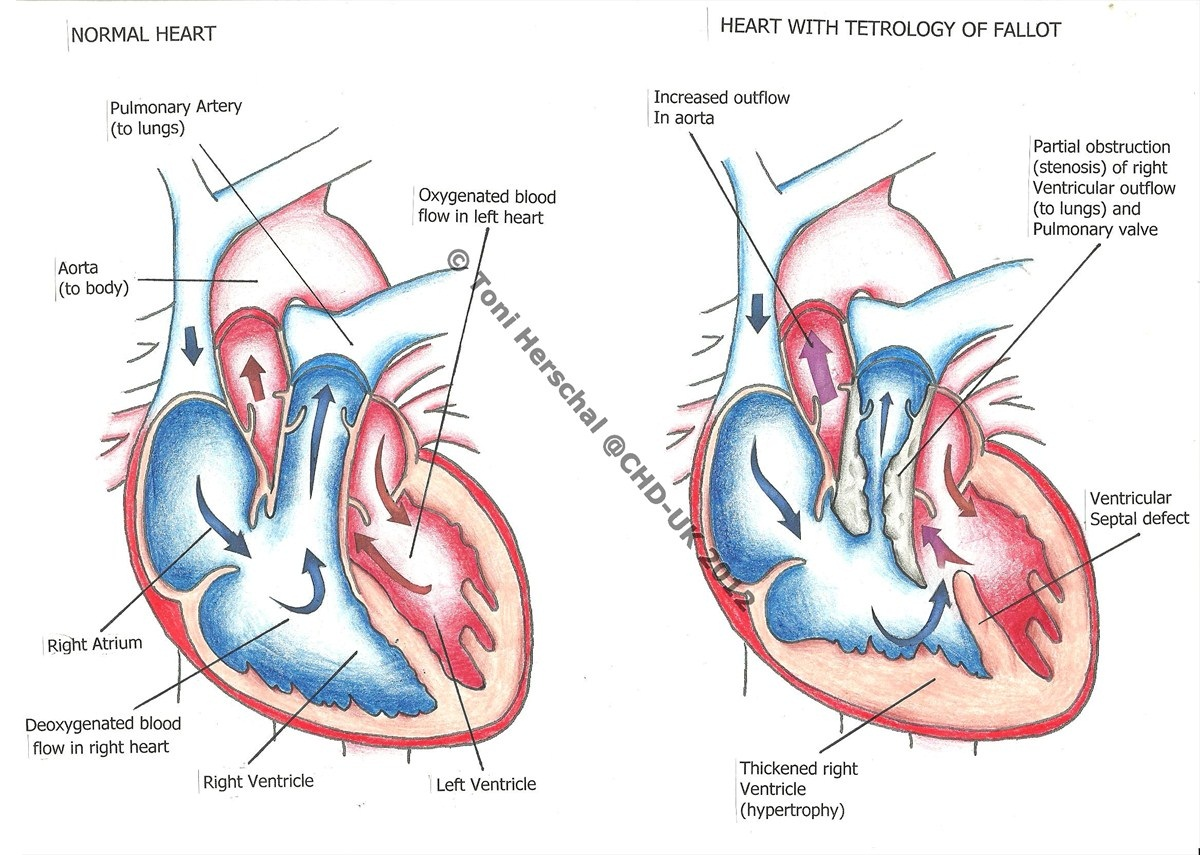 penyakit_jantung_bawaan