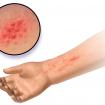alergi_kulit