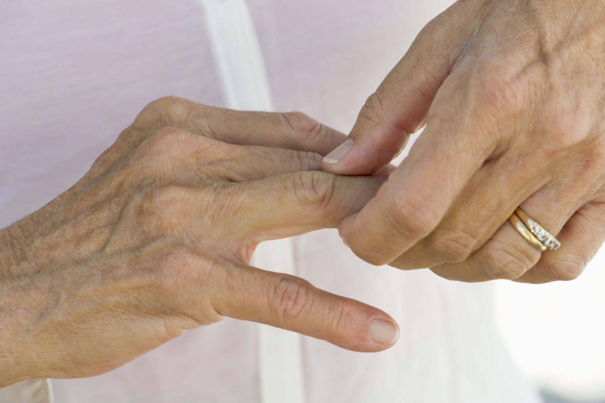 penyakit_arthritis