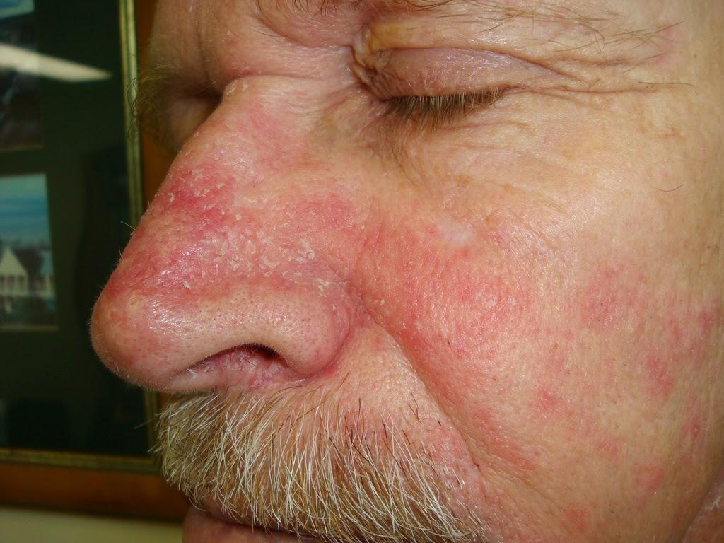 dermatitis_seboroik