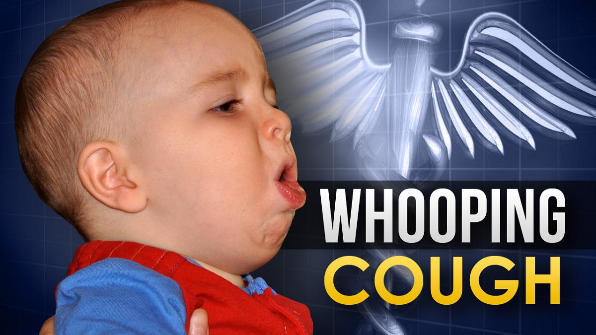 Cara Mengetahui Gejala Penyakit Batuk Rejan Dan Mengatasi ...