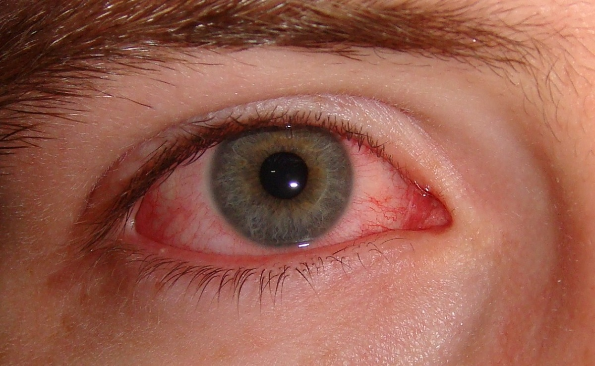 keratitis