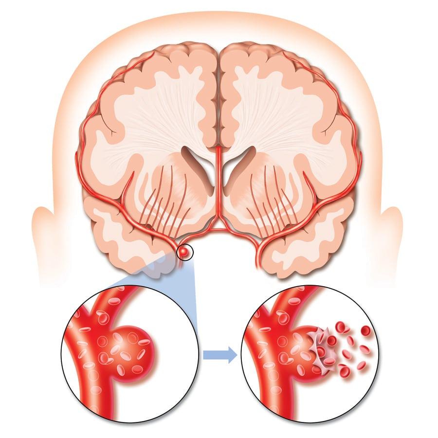 stroke_hemoragik